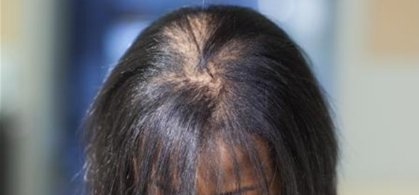 african-american-hair-facts