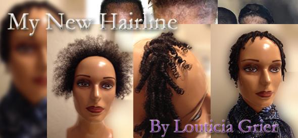 my-new-hair-line