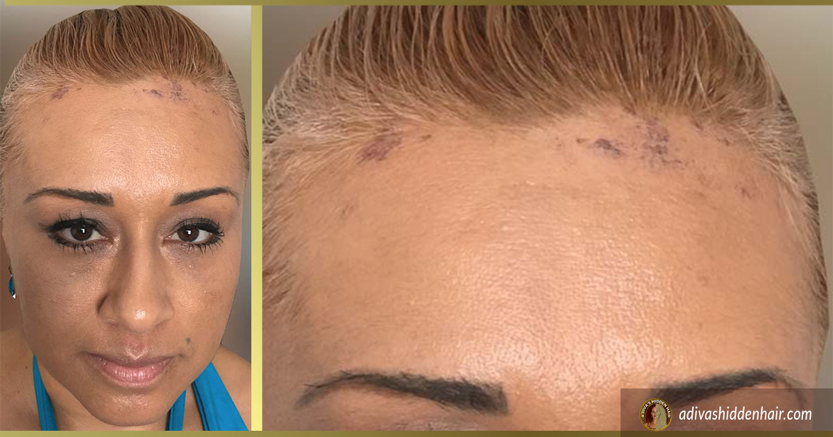 Female Frontal Hairline Restoration Dr Gabel Portland Oregon